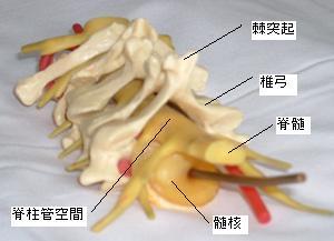 東京女子医科大学整形外科提供 の模型図